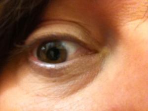 Anne eye